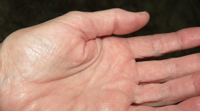 Jak se artritida projevuje?