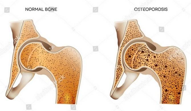 Výrazně náchylnější k osteoporóze jsou ženy
