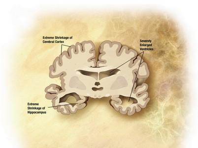 Čím starší, tím vyšší riziko Alzheimera